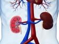 Manejo de la AKI en el transcurso de una cirrosis hepática descompensada