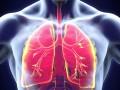 ¿Cómo dirigir el tratamiento de pacientes con hipertensión pulmonar?