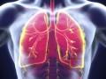 EPOC: combinación LABA + LAMA más beneficiosa que la de LABA + corticosteroides inhalados